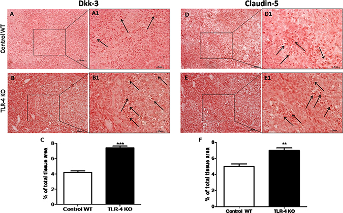 Effects of TLR-4 on Dkk-3 and claudin-5 expressions in U-87 xenograft tumors.
