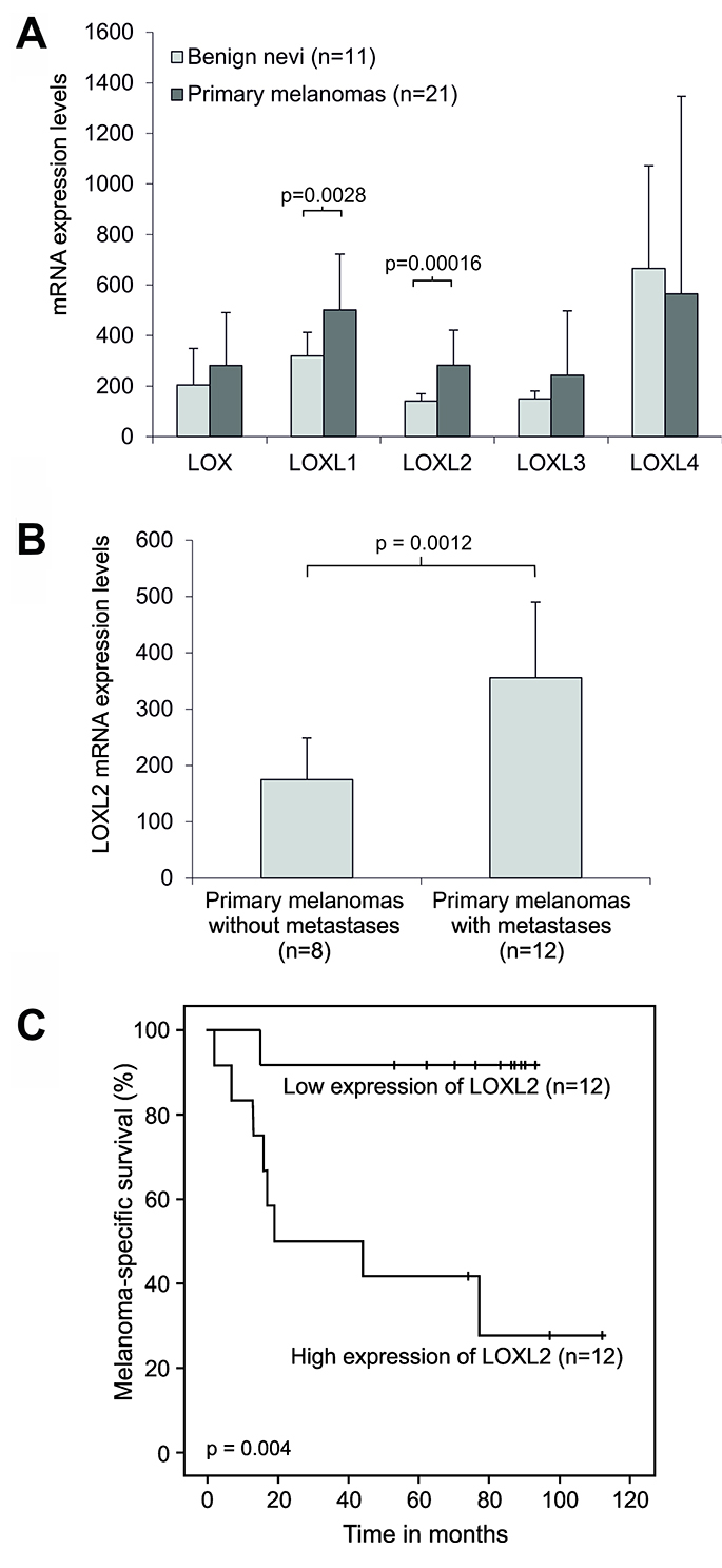 Expression of LOX and LOX-like genes in clinical human melanoma samples.