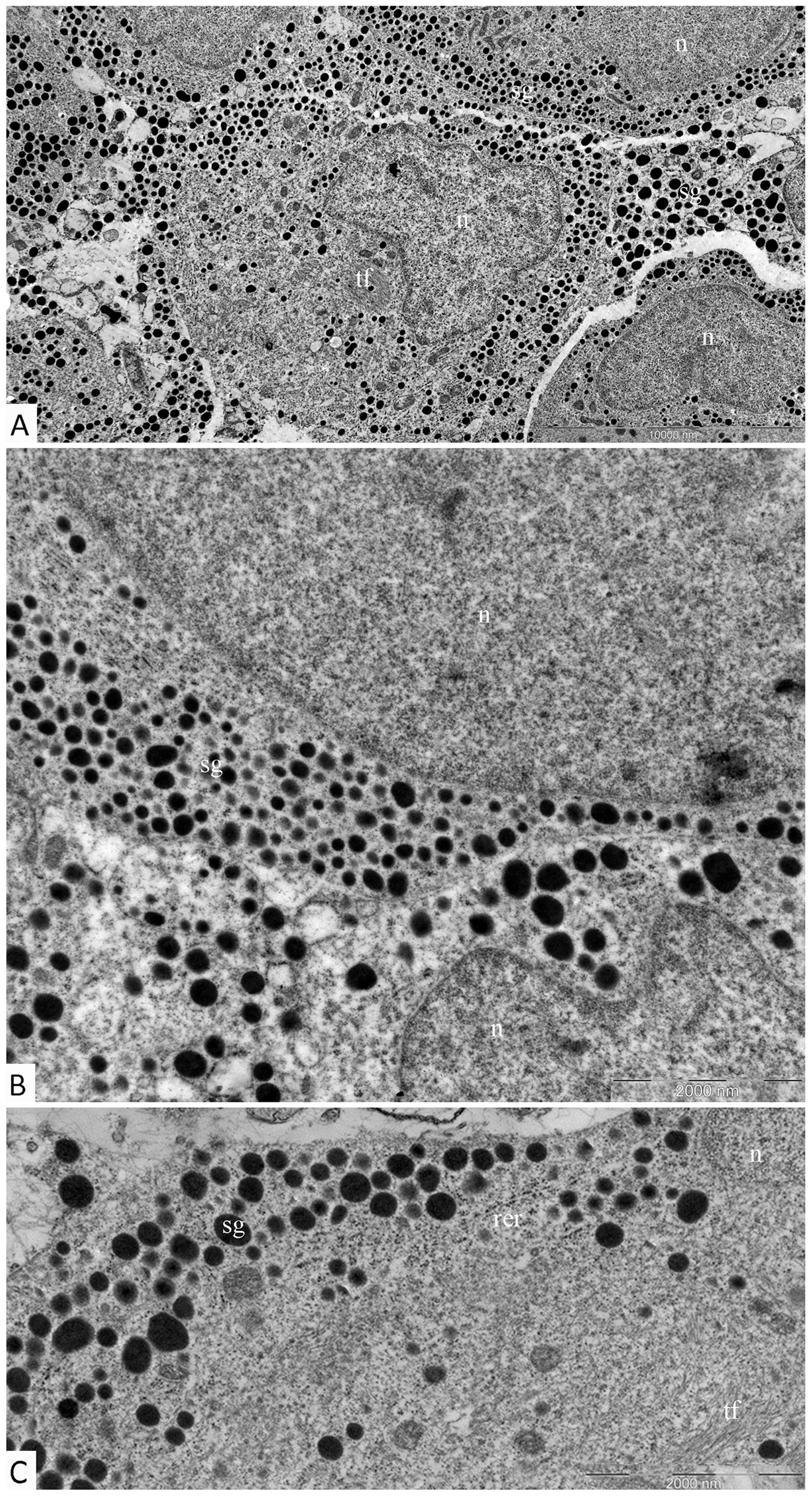Ultrastructure of mammosomatotropinoma cells.