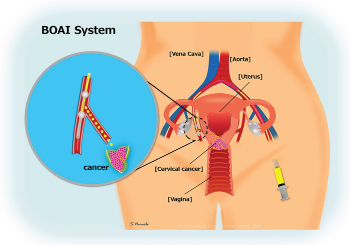 Balloon-occluded arterial infusion therapy (BOAI).
