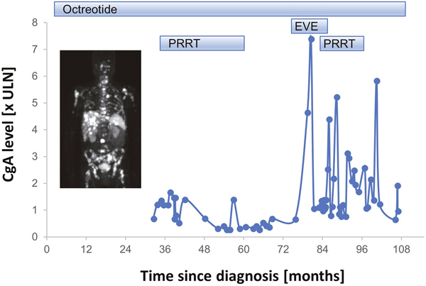 Overview of systemic therapy sequence and tumor marker chromogranin A (CgA) of a patient with metastatic prostatic well differentiated NET (carcinoid).