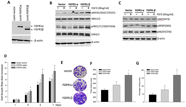 Effects of overexpression of FGFR1α and FGFR1β in MCF-10A cells on FGFR signaling and cell proliferation.