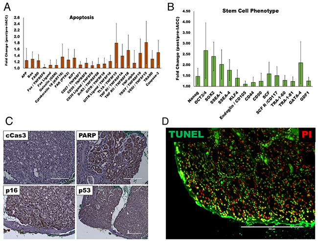 Apoptotic and stem/progenitor phenotypes present in post-IACC tumor samples.