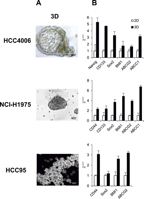 Characteristics of NSCLC cell lines HCC4006, NCI-H1975 and HCC95.