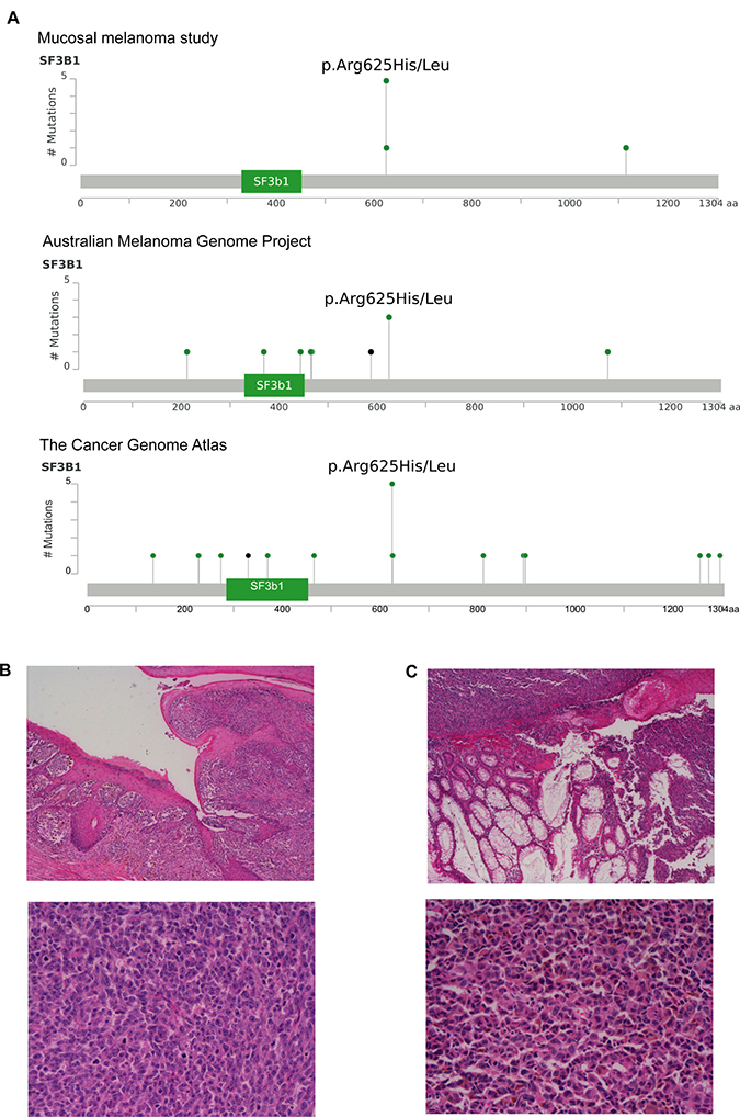 Recurrent hotspot SF3B1 R625 mutations and co-occurrence mutation events in mucosal melanoma.
