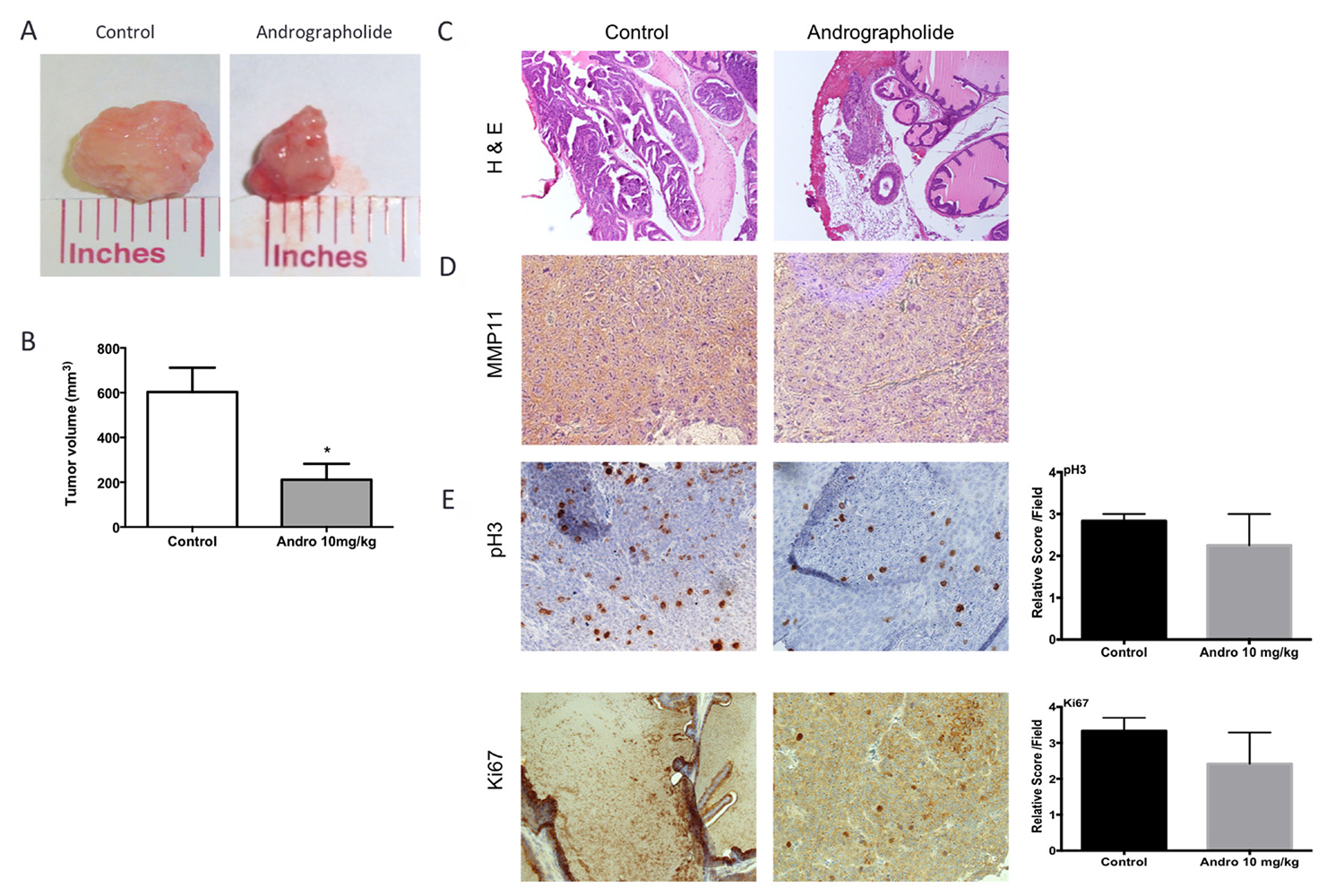 Andrographolide decreased tumor growth, MMP11 expression and proliferation.