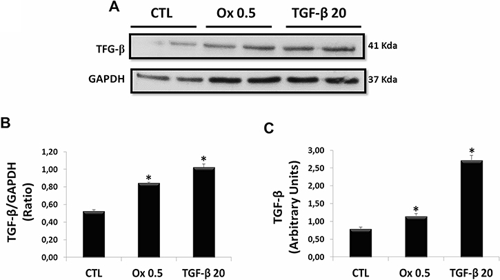 Evaluation of main mediator of epithelial to mesenchymal transition: endogenous synthesis of TGF-β1 in vitro.