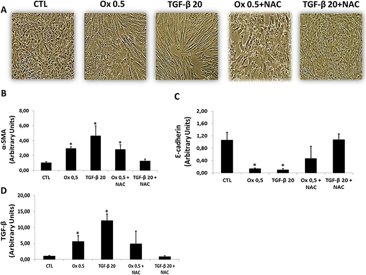 Effects of NAC on TGF-β1 and oxalate-induced EMT.