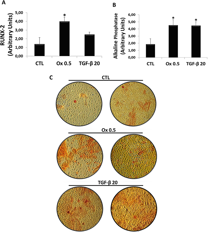 Evaluation of osteogenic genes expression in vitro.