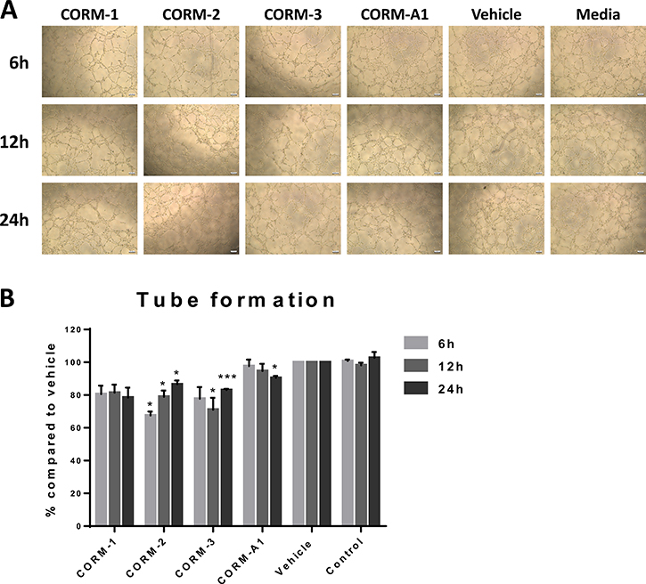 Tube formation ability of HECV after conditioned media treatments.