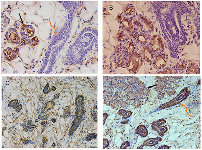 Images shown are immunohistochemical confirmation that NSP2 is unable to respond to pregnancy signals and form functional acini.