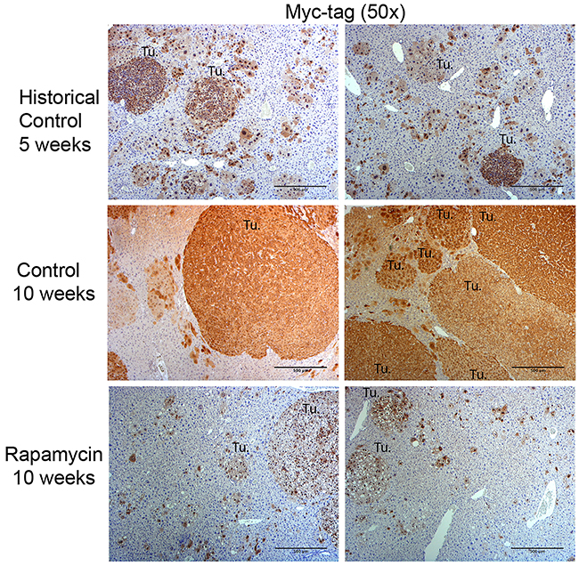 Immunohistochemistry for Myc-tag in the Yap1-β-catenin HB mouse model with and without Rapamycin treatment.
