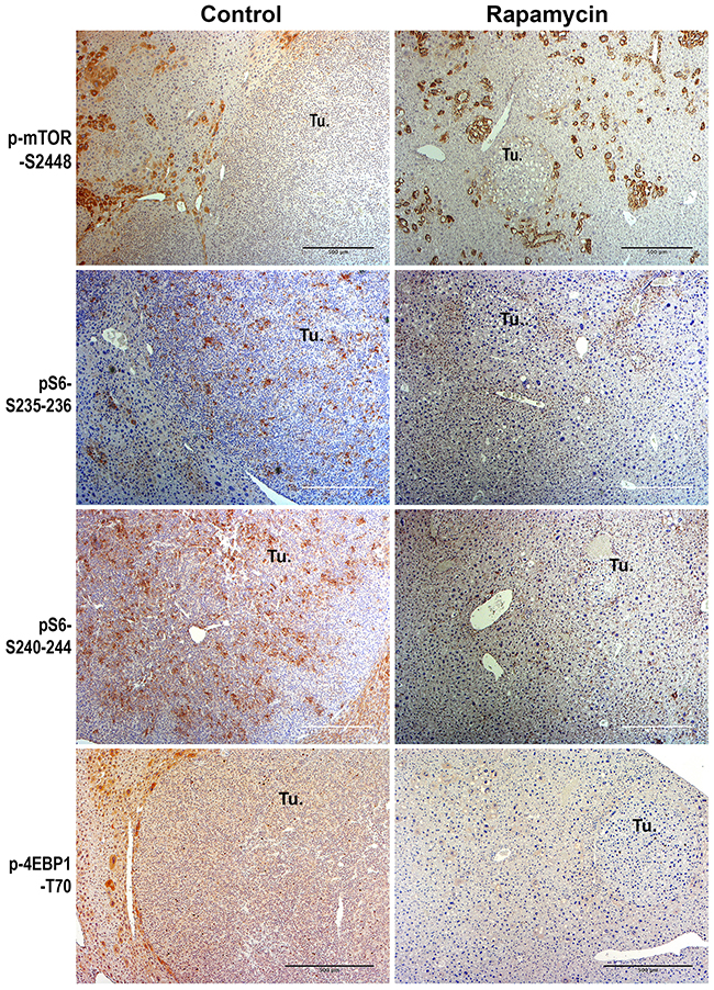 Immunohistochemical analysis of mTORC1 signaling in the HB in the Yap1-β-catenin mice treated with Rapamycin versus no treatment.