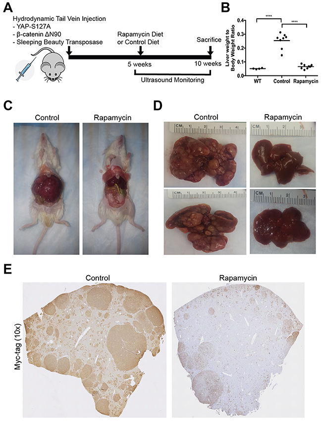 A notable decrease in tumor burden in the Yap1-β-catenin mouse model following Rapamycin treatment.