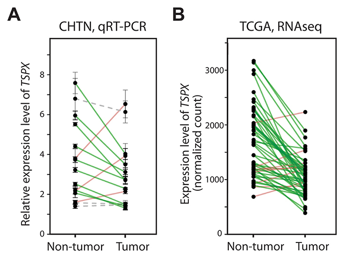 The expression level of TSPX was frequently down-regulated in clinical prostate cancer.