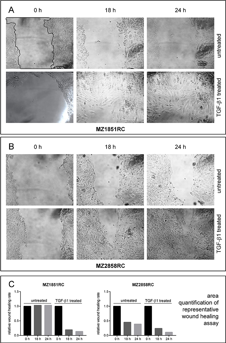 Wound healing properties of RCC cell lines after TGF-β1 treatment.