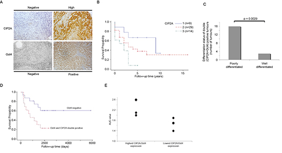 Double Oct4 and CIP2A positivity is linked to poor differentiation level and increased radioresistancy in HNSCC patients.