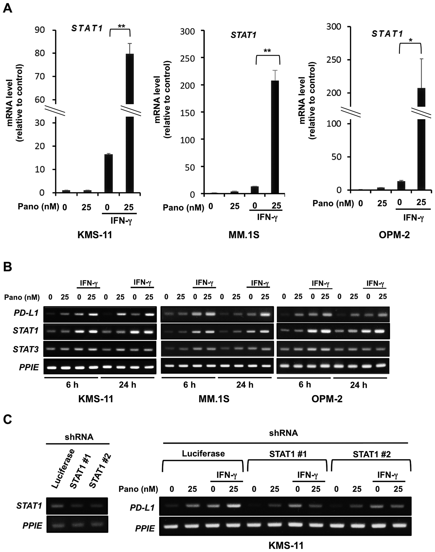 STAT1 upregulation in MM cells by panobinostat in the presence of IFN-γ.