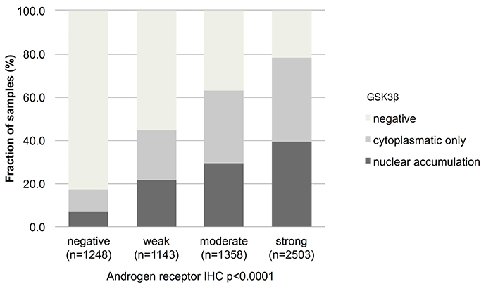 Association between GSK3ß staining pattern and expression of androgen receptor.