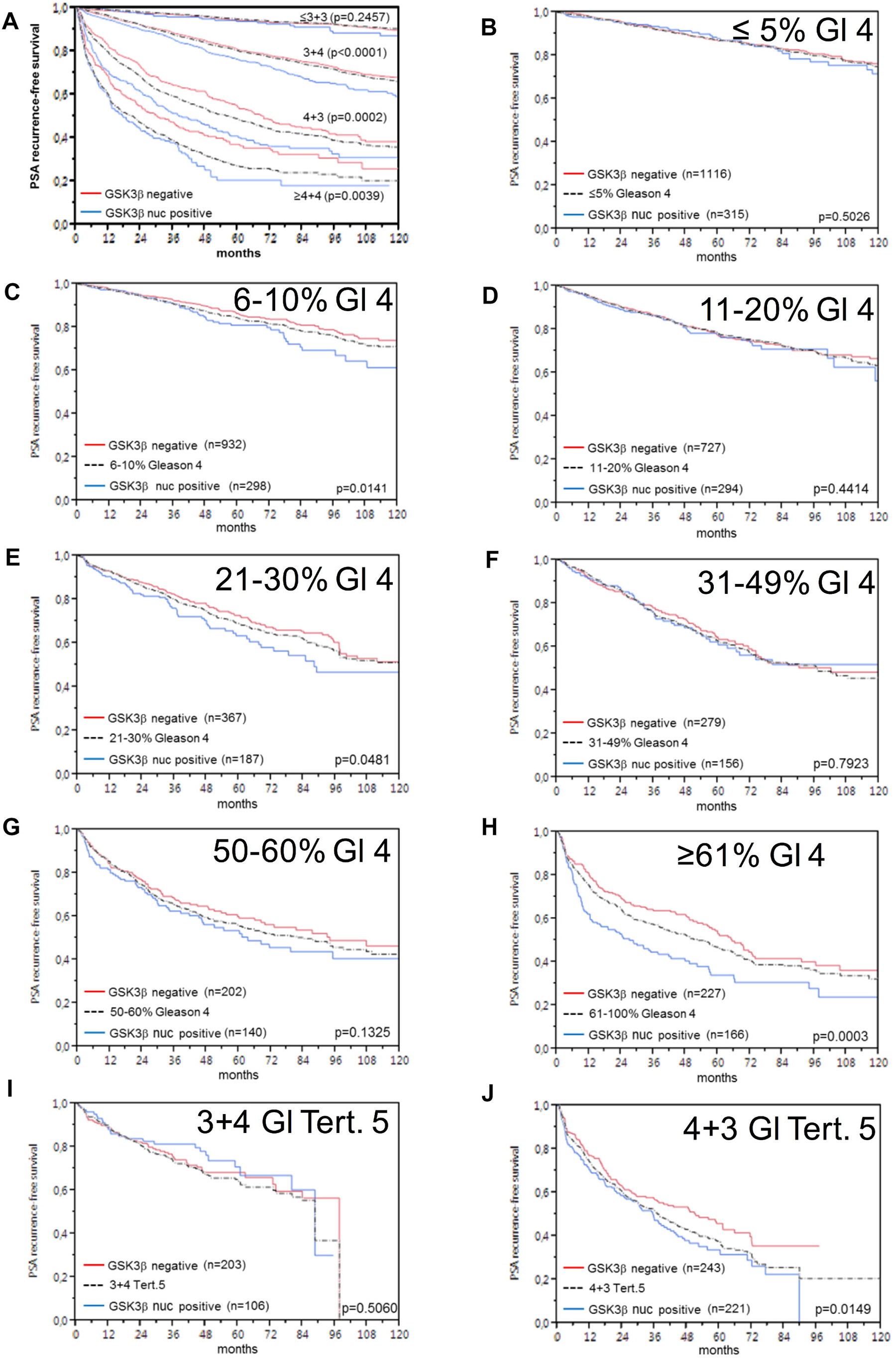 Prognostic impact of GSK3ß expression in subsets of cancers defined by the Gleason score.