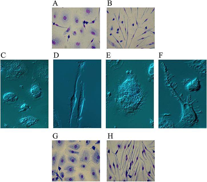 Ibrutinib-induced differentiation into fibrocyte-like cells.