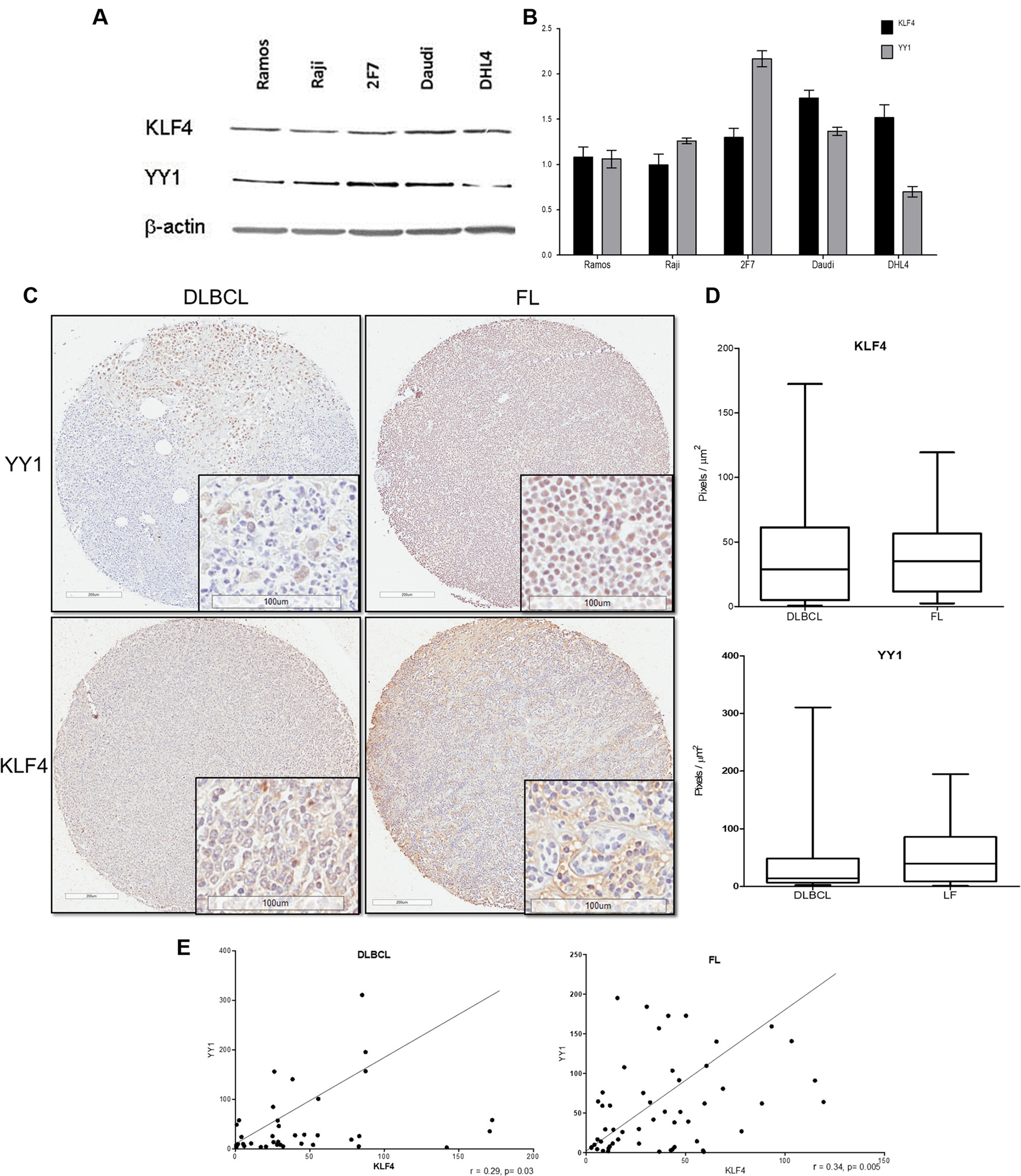 Expression of and correlation between KLF4 and YY1 in several tumor cell lines and NHL tissue arrays.
