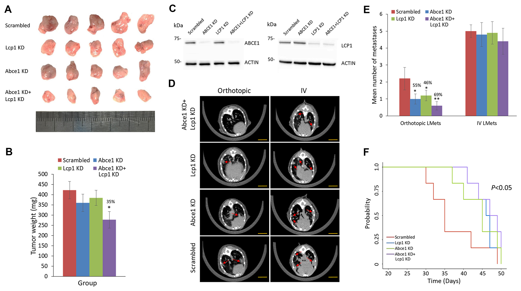 Reduced LCP1 expression in the early stages of metastasis decreases lung metastasis formation and is correlated with lower tumor grade and preferable intrinsic tumor subtype.