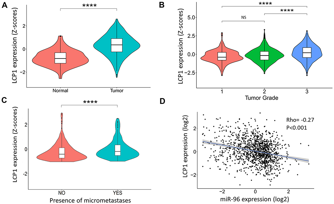 LCP1 gene expression in human breast cancer tissues.