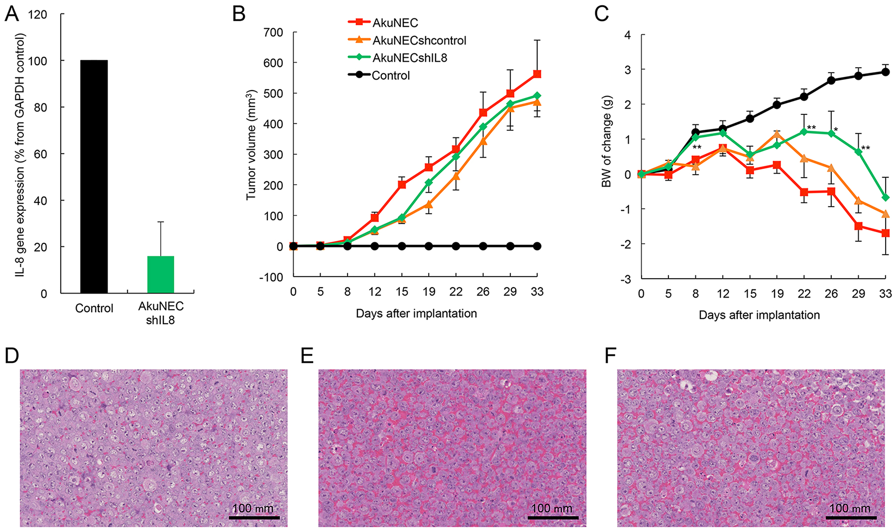 Results of IL-8 gene knockdown on tumor growth and BW-loss in s.