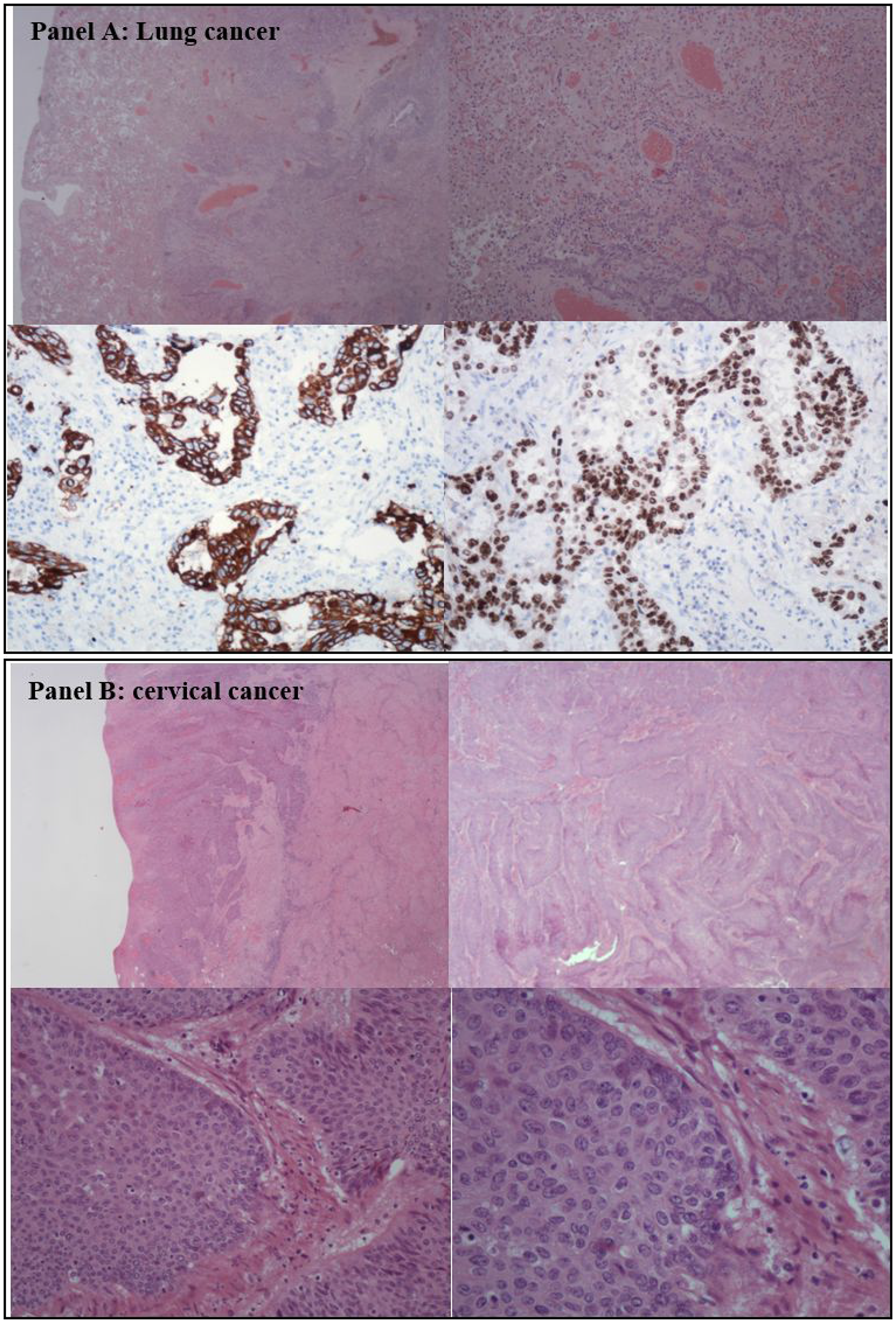 Histological analysis of the lung and cervical cancer.