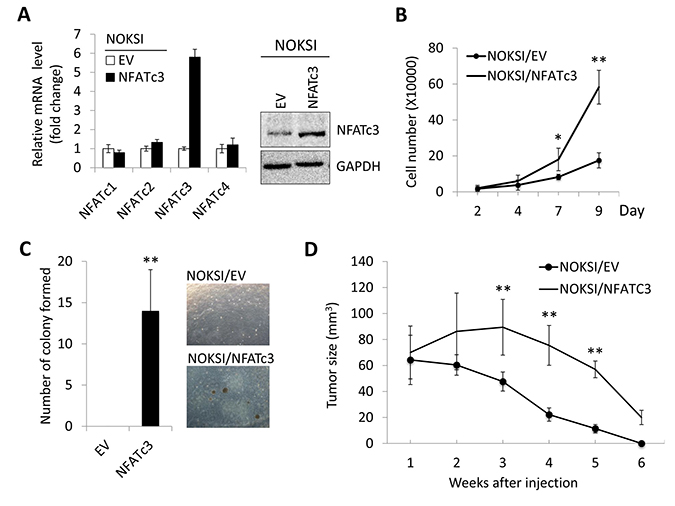 Ectopic expression of NFATc3 induces malignant cell growth in immortalized oral epithelial cells.