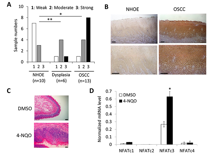 Elevated expression of NFATc3 during OSCC carcinogenesis in vivo.