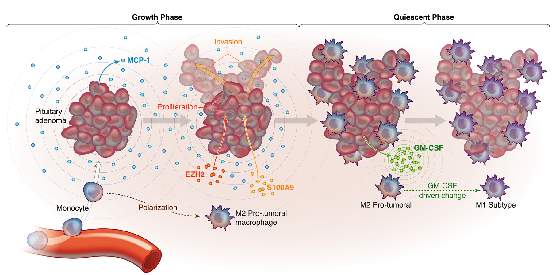 Figure 6. Proposed model for how macrophages are recruited to NFPAs in a manner that creates distinct growth phases.