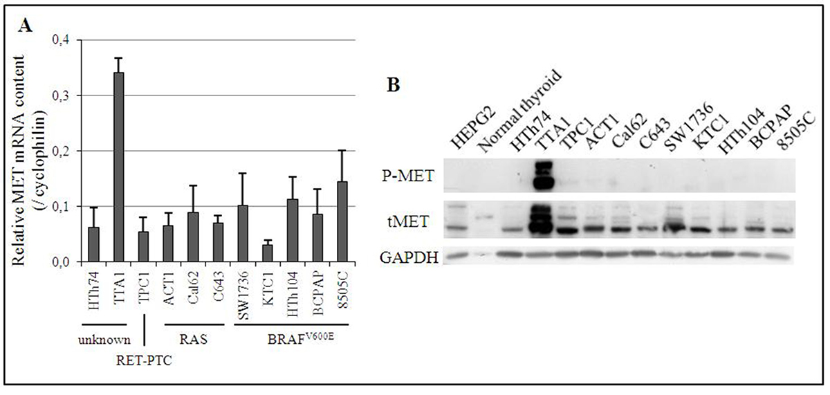 Expression of MET in 11 human thyroid cancer cell lines.