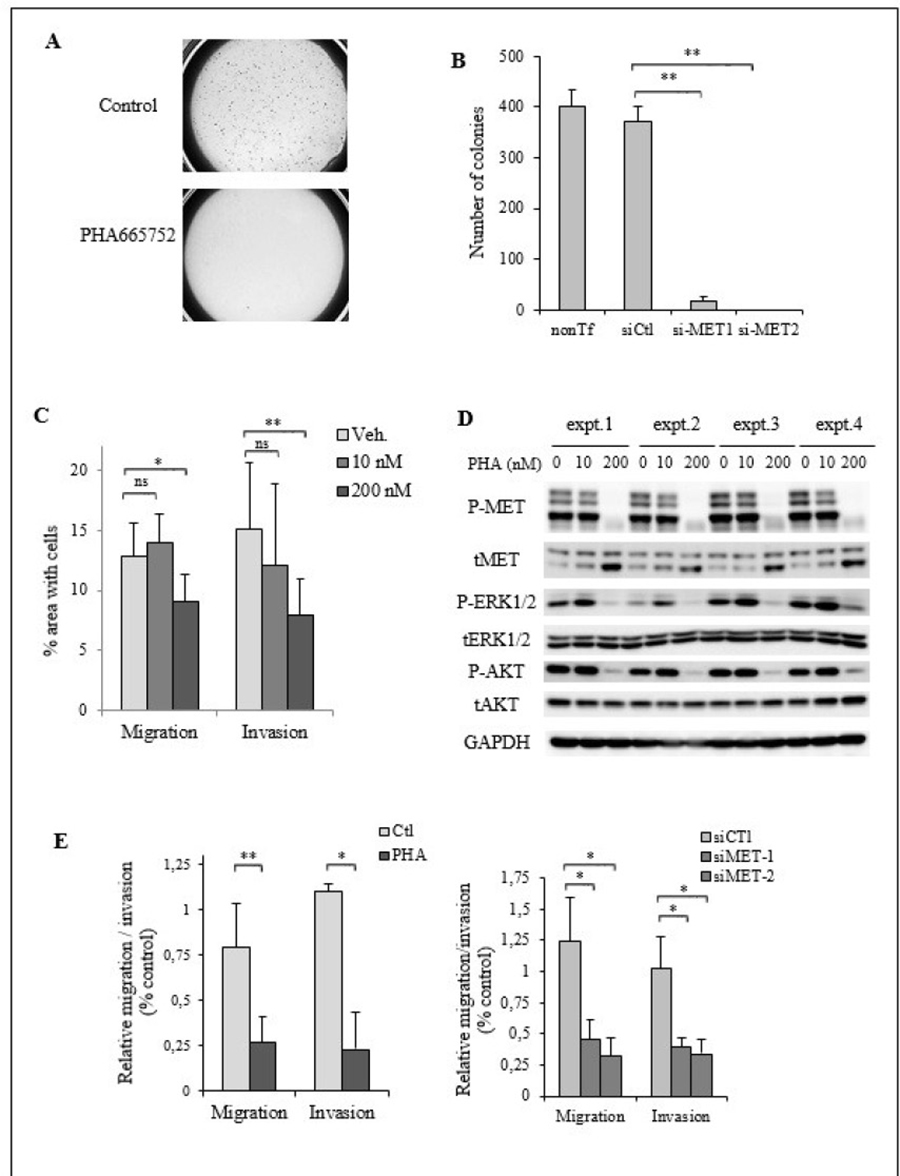 MET activation is required for cell migration and invasion in TTA1 cells.