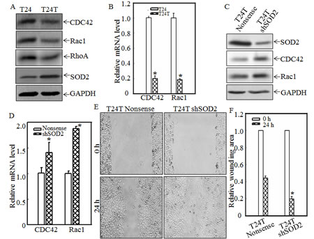 SOD2 inhibited CDC42 and Rac1 expression and thus, cell migration in human bladder T24T cells.