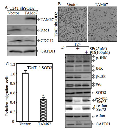 C-Jun mediates SOD2-regulated Rac1 and CDC42 expression and cell migration of T24T cells.