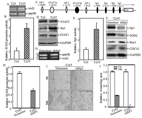 Sp1 overexpression and activation mediates SOD2 transcription and in turn inhibits Rac1 and CDC42 expression and cell migration in T24T cells.