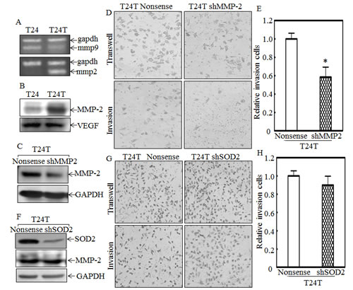 MMP-2, but not SOD2, contributes to high invasion of T24T cells.