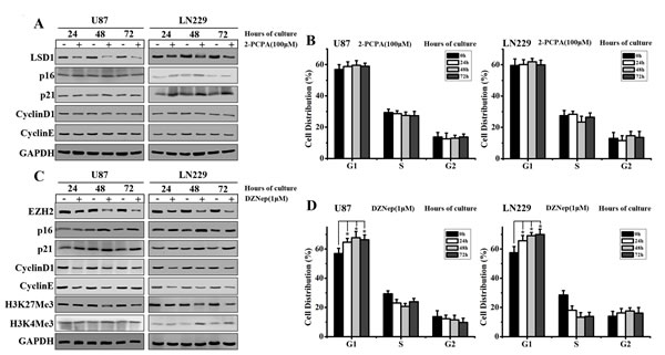EZH2 inhibition blocks cell cycle progression in GBM cells.