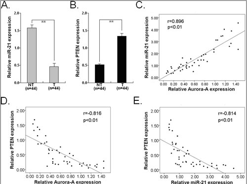 Expression of miR-21 and PTEN protein and their correlations with Aurora-A protein expression in HCC tissues.