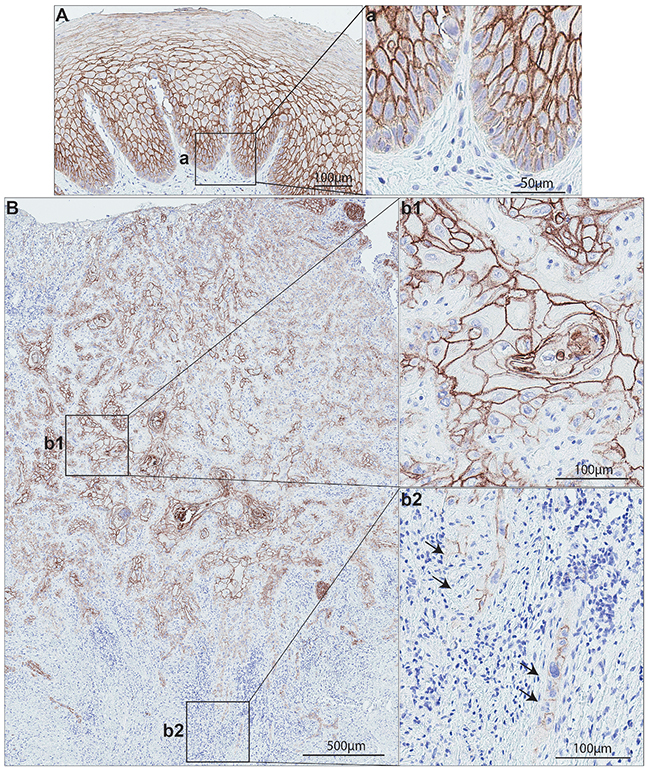 S100A14 expression on normal human oral mucosa and oral cancer specimens.