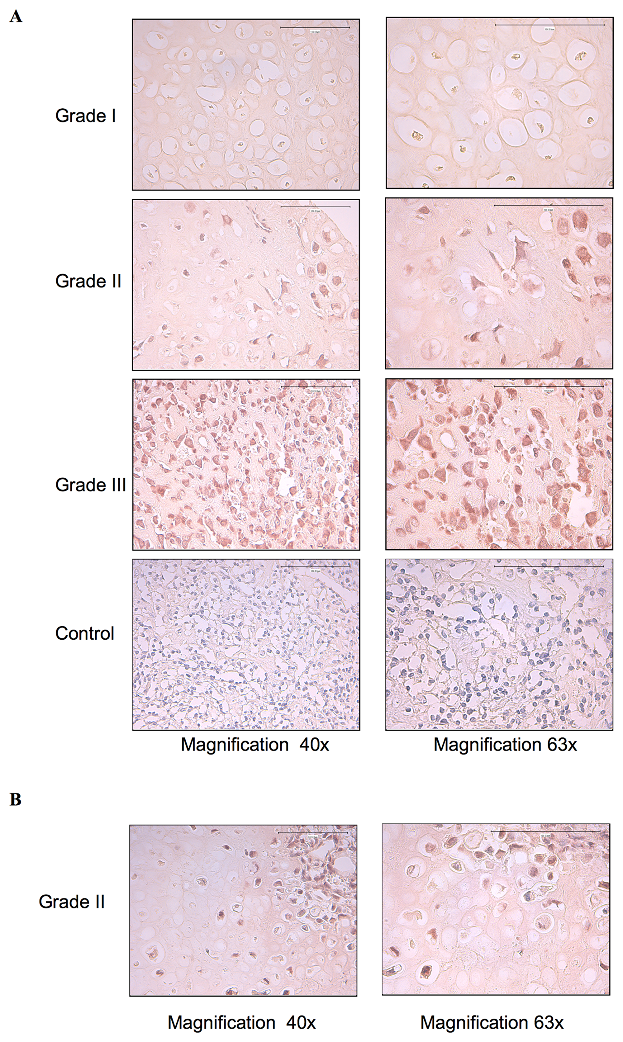 EGFR is constitutively activated in high-grade chondrosarcoma tumor biopsies.