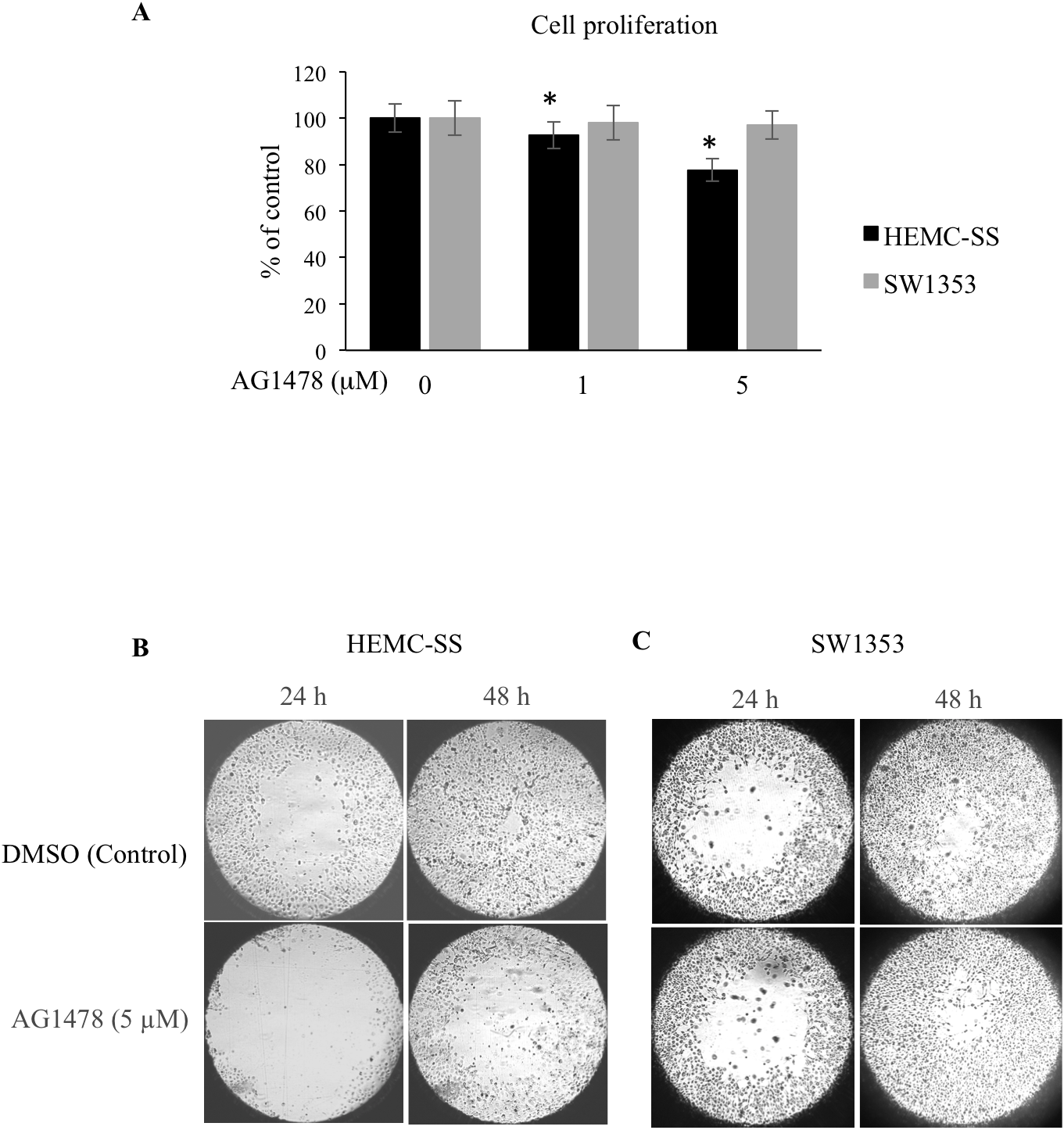 AG1478 reduces proliferation and migration of chondrosarcoma cells.
