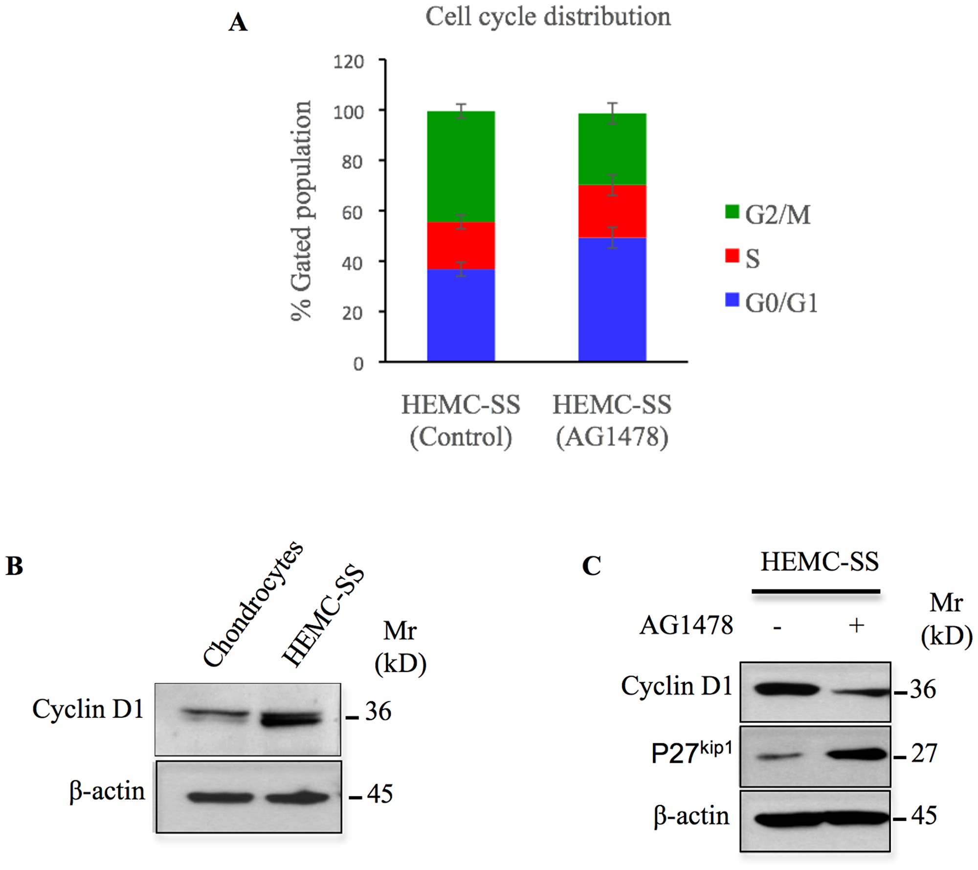 AG1478 produces cell cycle arrest, induces p27 and inhibits cyclin D1 in chondrosarcoma cells.