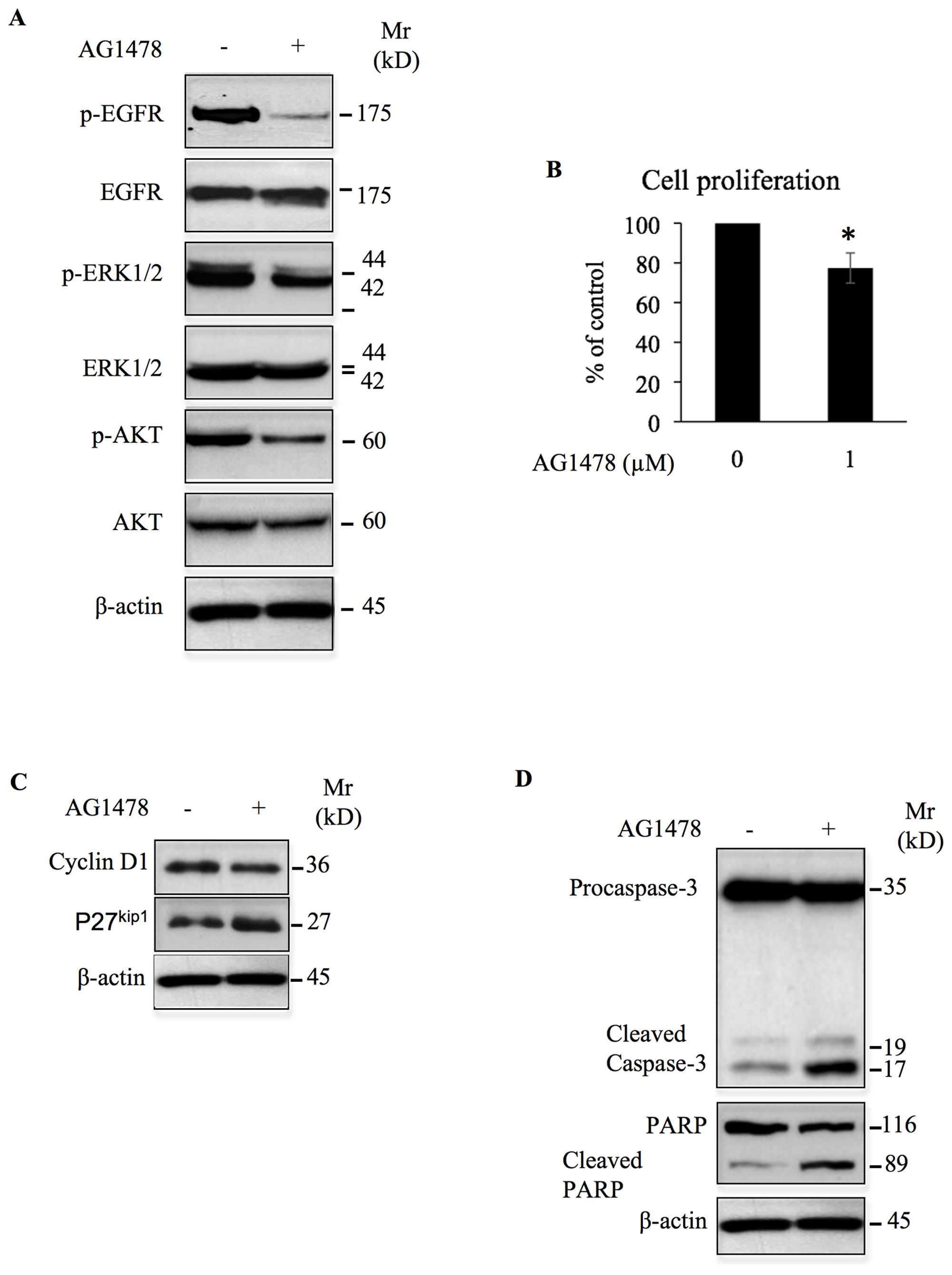 AG1478 inhibits oncogenic signals and cell growth, and induces apoptosis in high-grade chondrosarcoma cells.