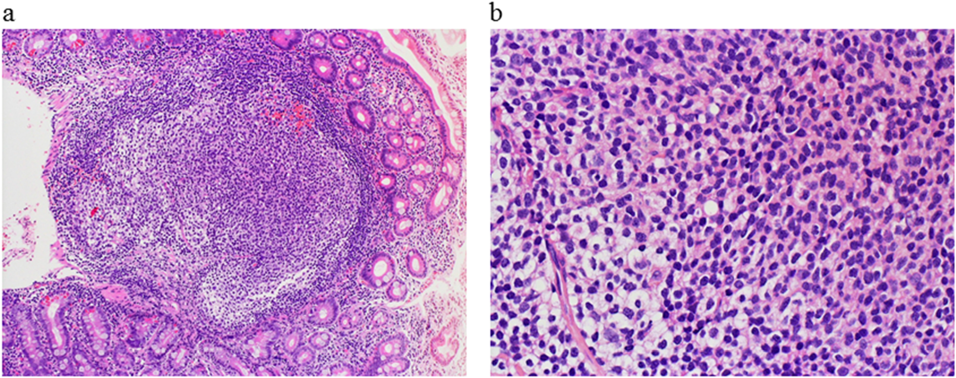 Histological findings of the duodenal tumor at diagnosis.