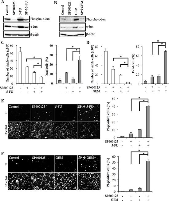 JNK inhibitor pretreatment sensitizes pancreatic cancer stem cells to 5-fluorouracil and gemcitabine.