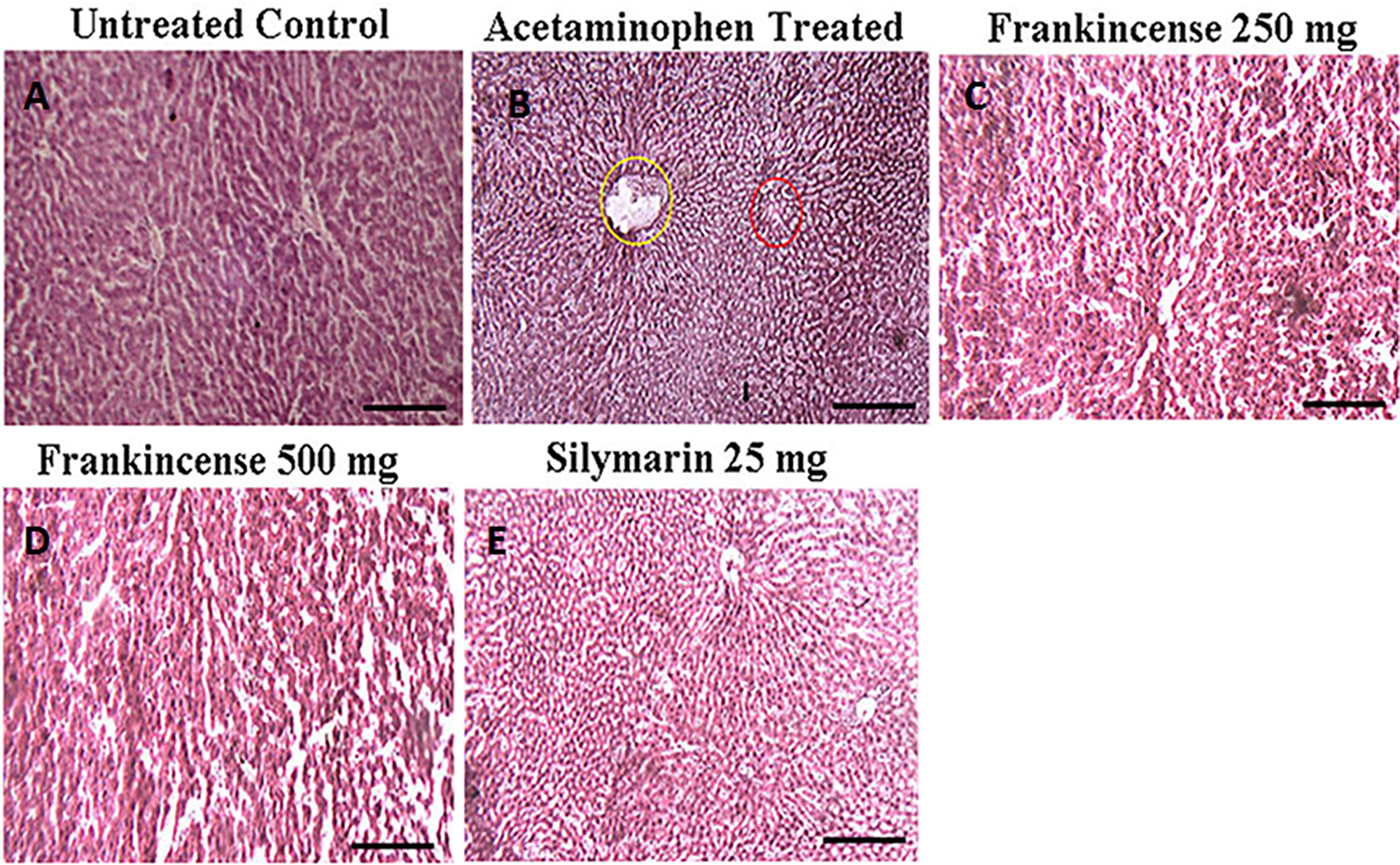 Efficacy of FEO on acetaminophen induced hepatic injury: Mice were divided into five groups (n = 6).