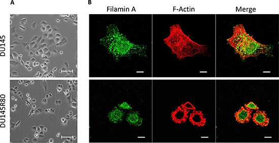 Morphology of DU145 and DU145R80 cells and cellular localization of FLMNA and F-actin.